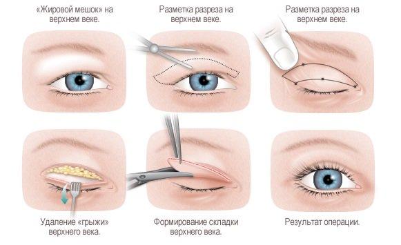 Хирургическое лечение птоза после ботокса