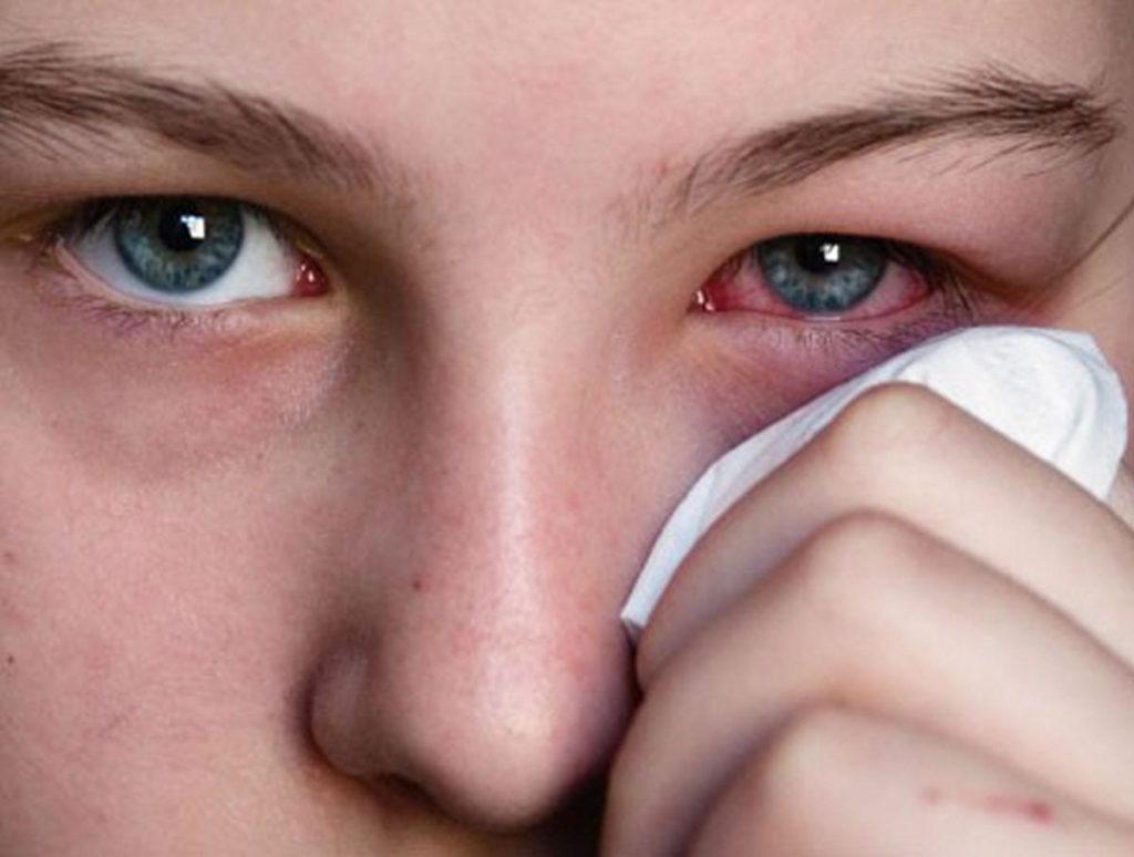 Что делать, если ячмень на глазу не проходит