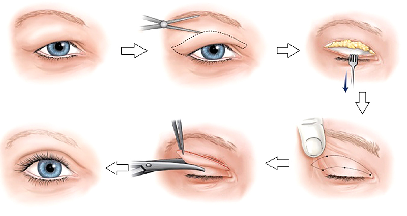 Хирургическое лечение отека верхних век