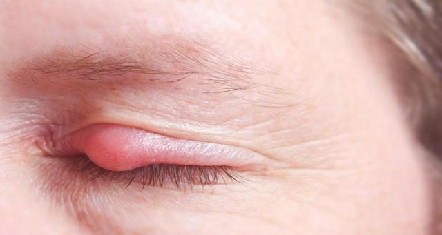 Хронический ячмень на глазу