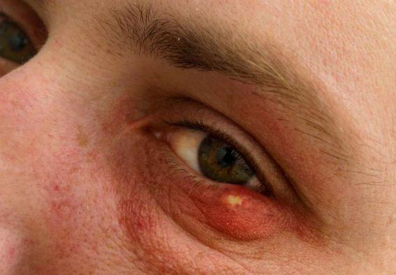 Как предотвратить ячмень на глазу