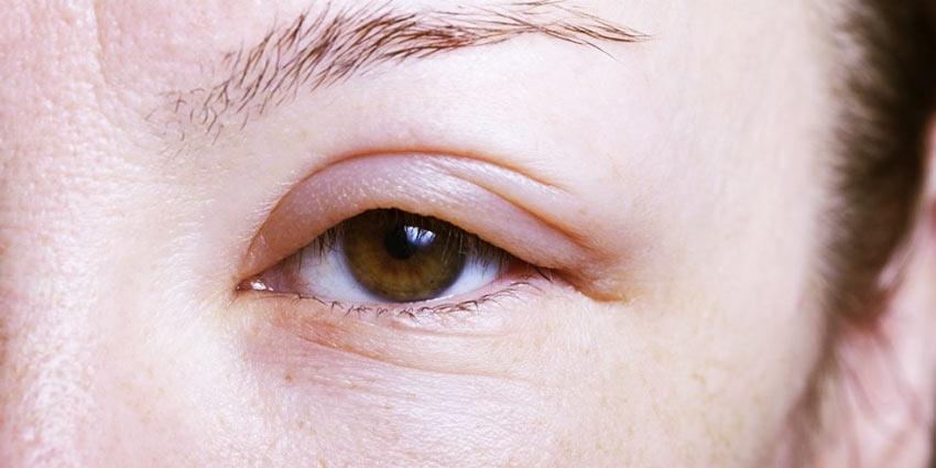 Лечение аллергического отека верхнего века
