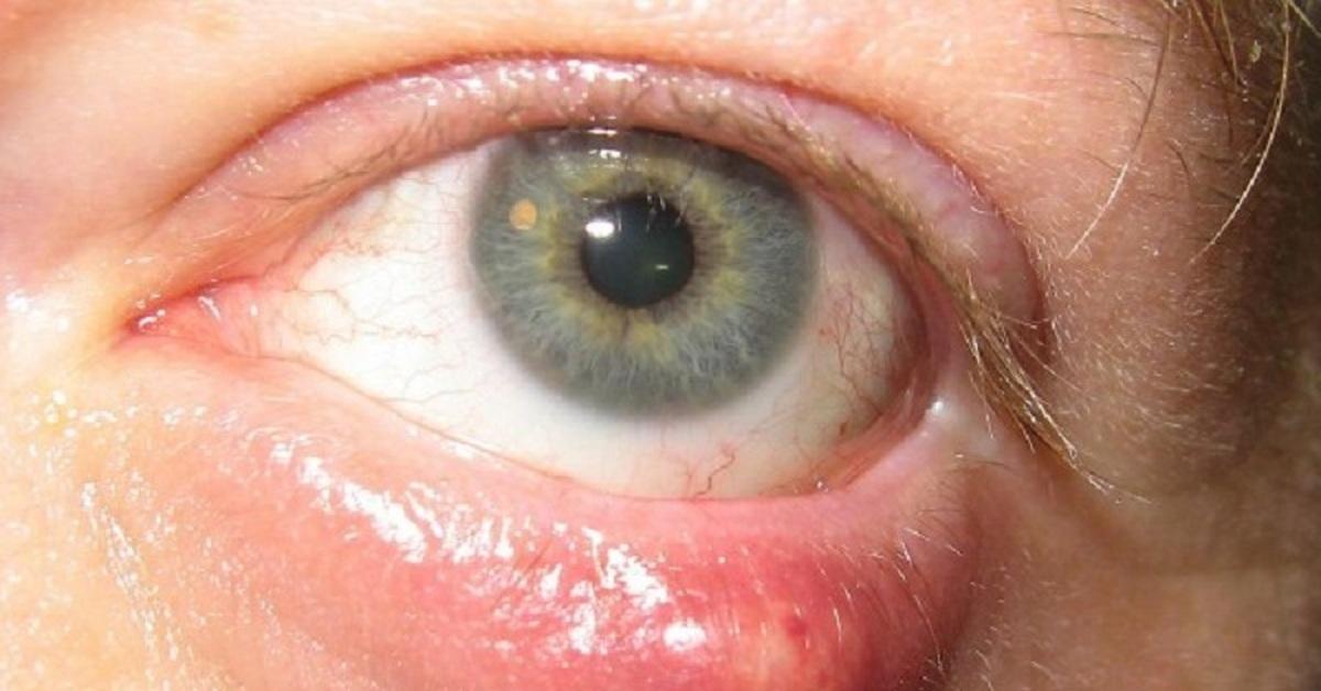 Мази и капли от ячменя на глазу