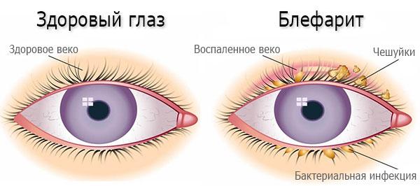 Аллергический блефарит фото