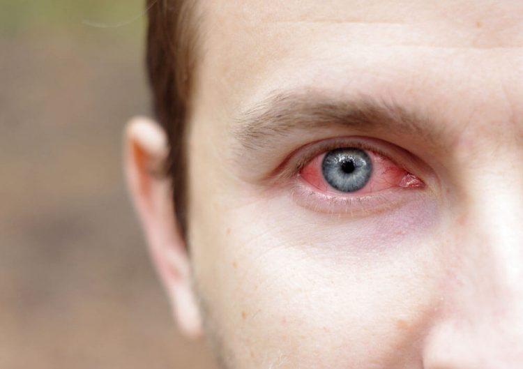 Чем опасна глаукома: осложнения и последствия, как лечить